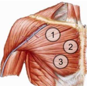 как накачать верхнюю часть грудных мышц - анатомия